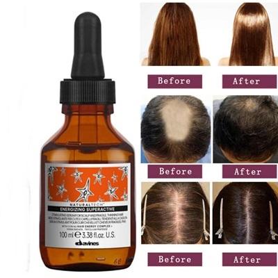 Tinh chất Davines hỗ trợ tóc mọc nhanh, an toàn