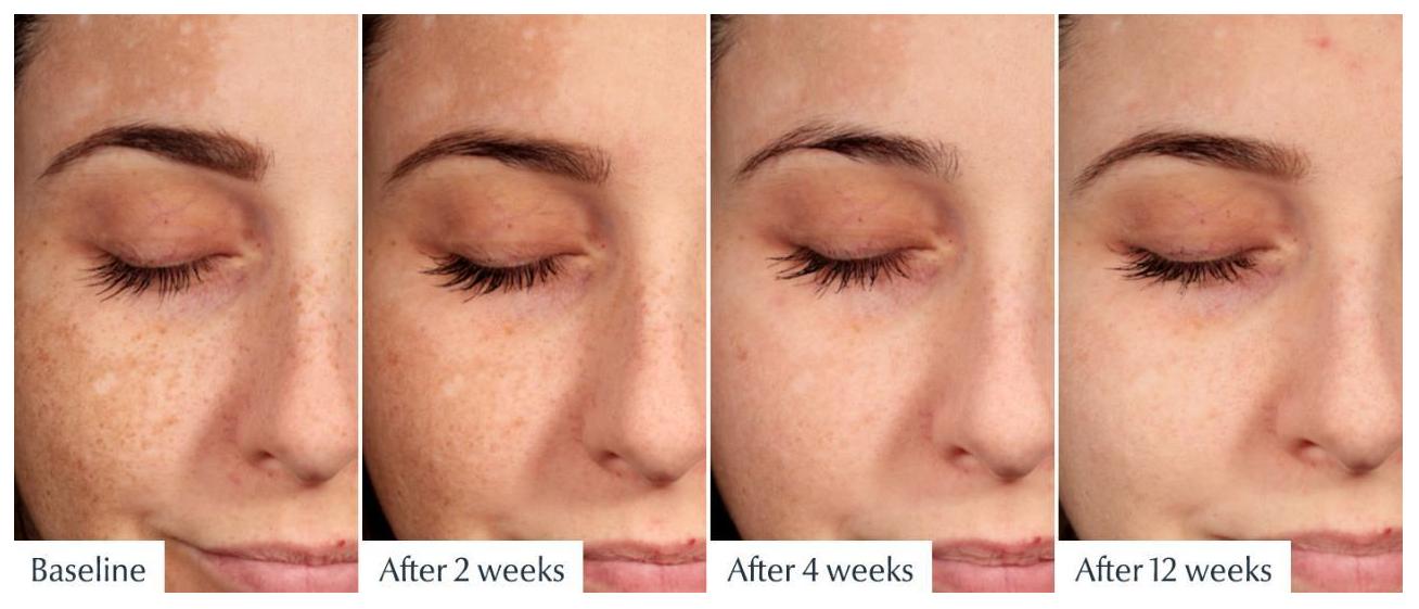 Hiệu quả cải thiện và chăm sóc da vượt trội