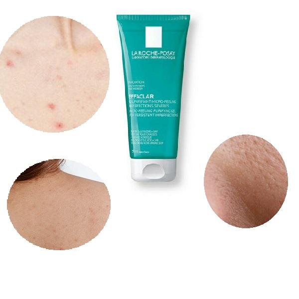 Gel La Roche Posay Effaclar Micro-Peeling làm sạch nhờn da mặt, ngực, lưng