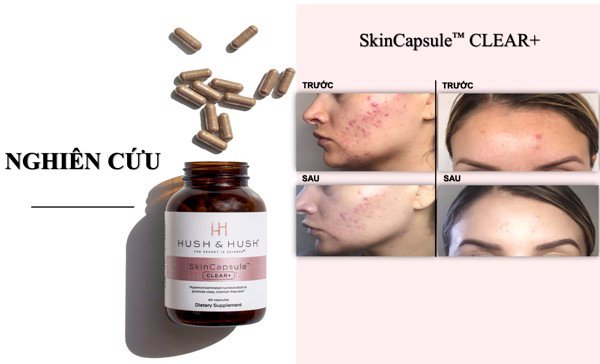 Viên uống Hush & Hush Skin Capsule Clear+ hõ trợ giảm mụn hiệu quả