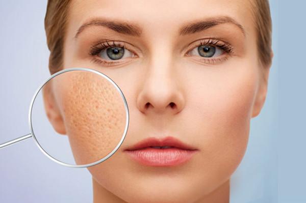 https://chiaki.vn/tay-da-chet-paula-s-choice-advanced-pore-treatment-4-bha