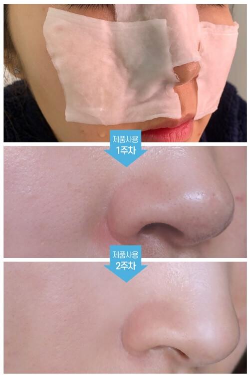Dung dịch ủ mụn đầu đen Medi-peel Extra Super 9 Hàn Quốc chuyên dùng tại các Spa