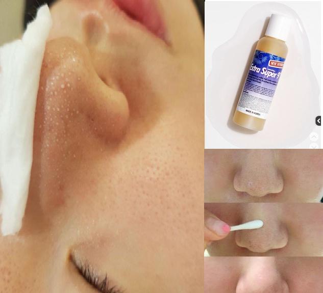 Dung dịch ủ mụn đầu đen Medi-peel Extra Super 9 cải thiện tình trạng mụn đầu đen hiệu quả