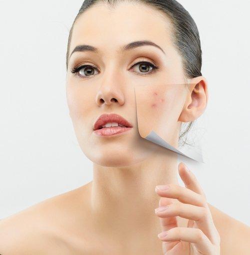 Kem hỗ trợ giảm mụn Farmona Dermacos Anti Acne 50ml hỗ trợ giảm mụn hiệu quả