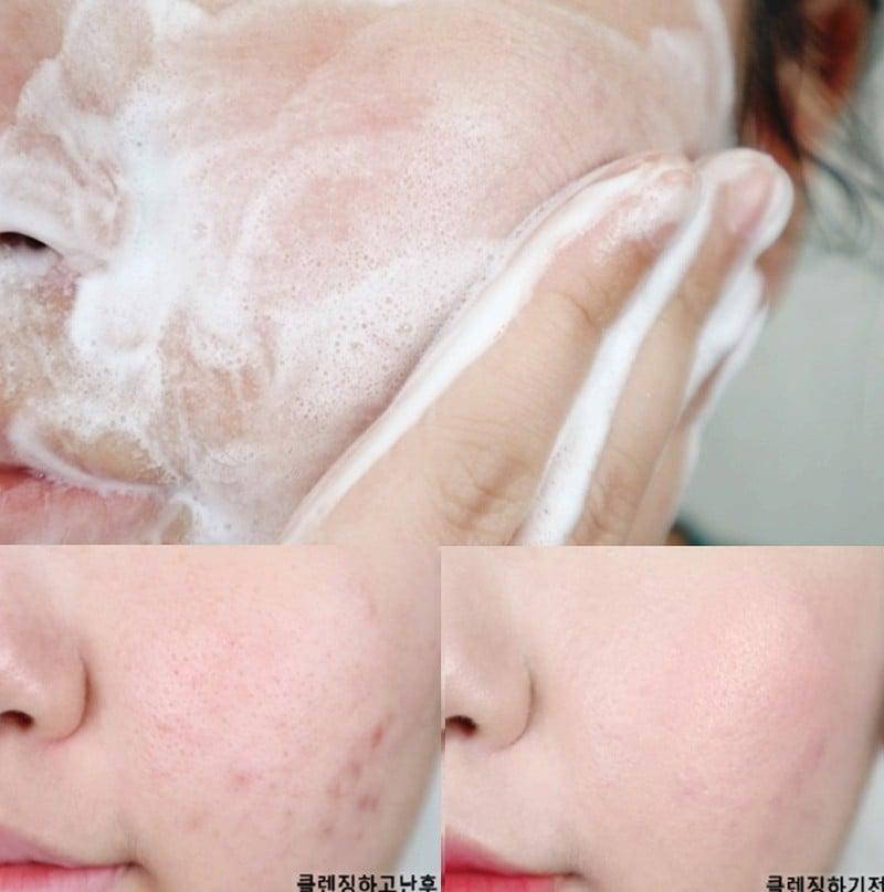 Sữa rửa mặt cân bằng da PHA 5.5 pH  sạch dịu da
